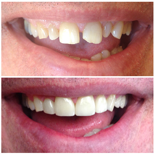 Before and after smile after cosmetic treatment at Eugene Dental Group, in Eugene, OR