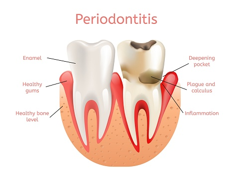 Periodontal disease treatment at Eugene Dental Group