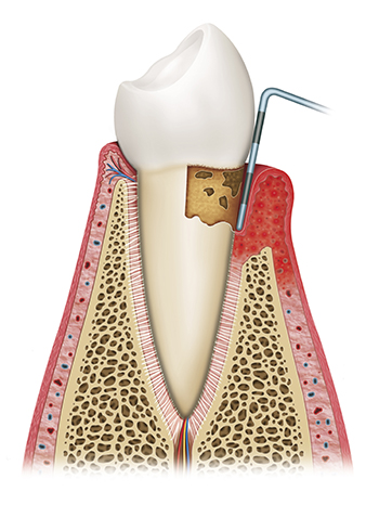 Diagram of scaling and root planing at Eugene Dental Group
